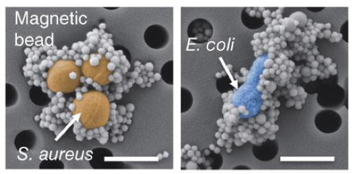 """صورة مجهرية للكريات المغناطيسية تحيط ببكتيريا """"إشيريشيا كولي"""" (باللون الأزرق) وبالمكورات العنقودية الذهبية (باللون الأصفر) – ألوان غير طبيعية"""
