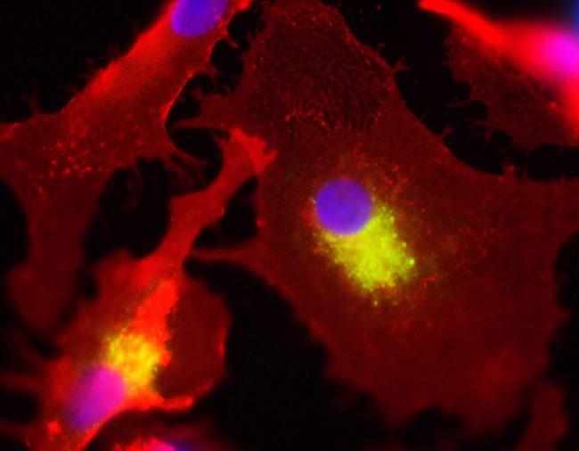 صورة لخلايا جدعية ملتفة حول خلايا سرطانية
