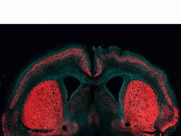 مورثة قد تكون السبب وراء الدماغ الكبير للإنسان