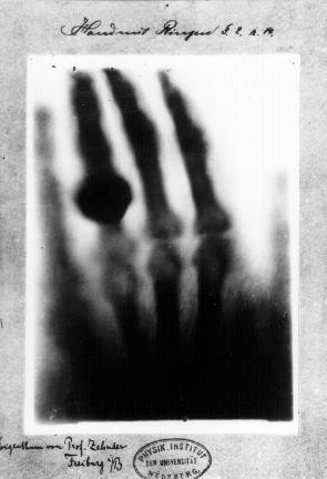 صورة يد بيرتا روتنجير