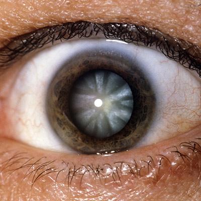 صورة توضح عينا مصابة بالساد (يتمثل هذا المرض في البقعة البيضاء التي تكونت بمركز العدسة)